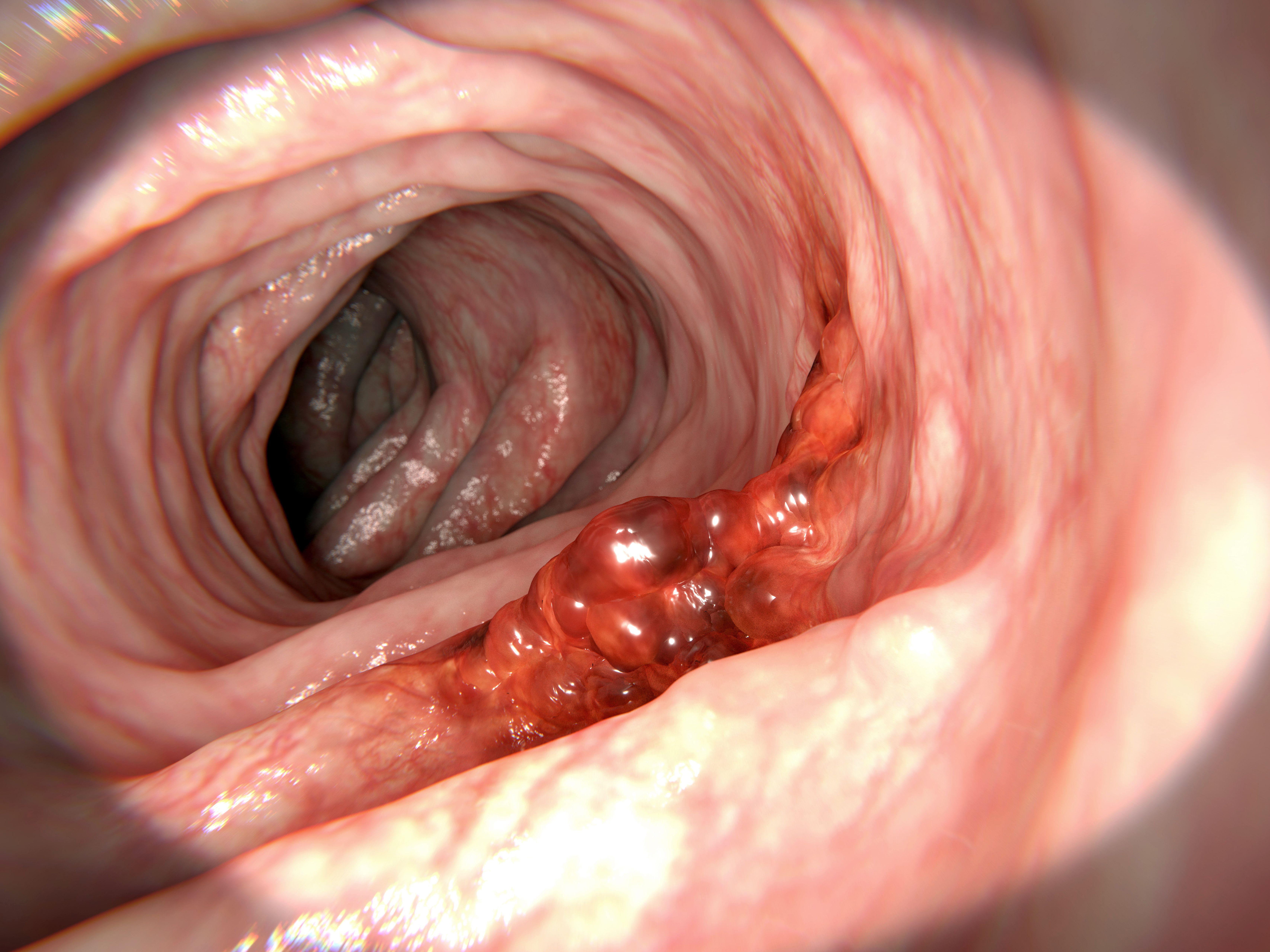 cum este tratată negi genitale