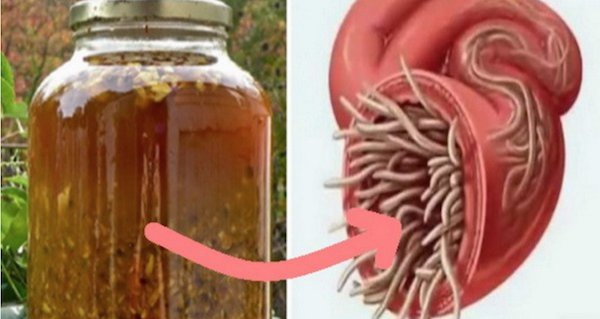 MCA Health Care - Parazitii intestinali