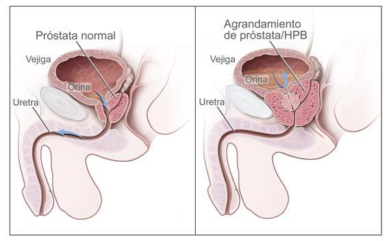 In Romania, 78% dintre barbatii care sufera de adenom de prostata nu se trateaza | GSK RO