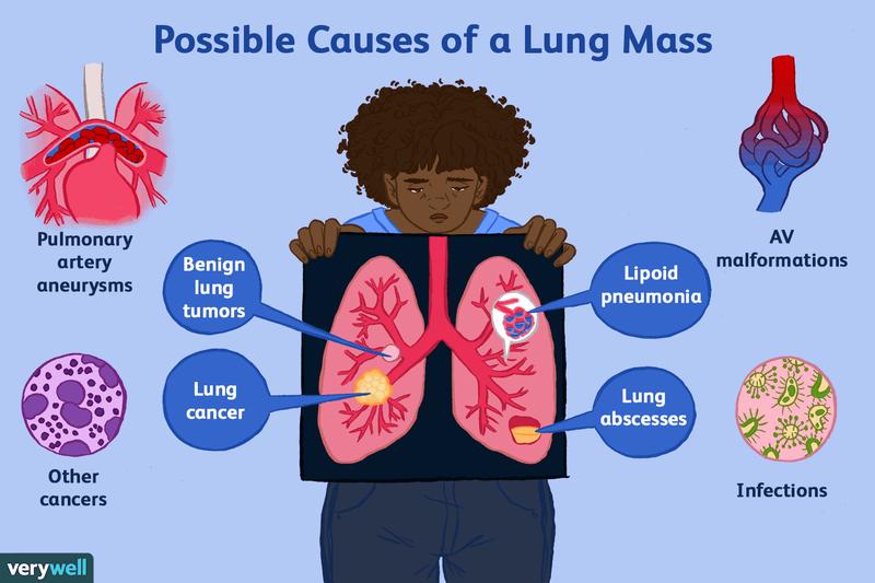 Eozinofilia pulmonară: cauze, simptome, tratament