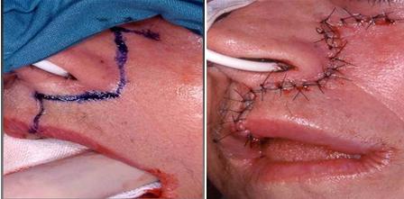 Papilloma interno bocca