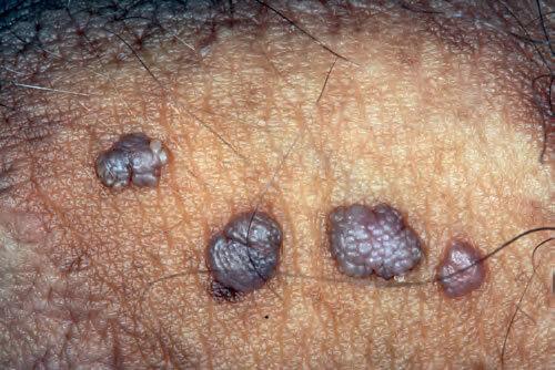 ce este verucile genitale în tratamentul femeilor boala autoimună giardia