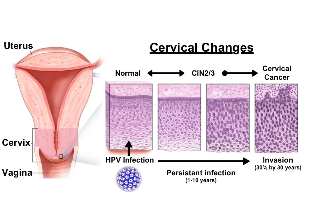 hpv womb cancer