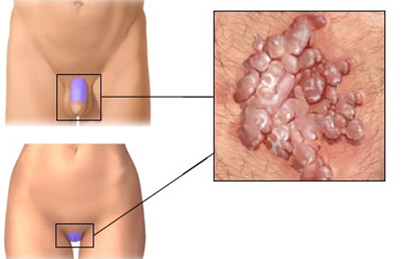laryngeal papillomatosis nhs papiloma precancer lesion