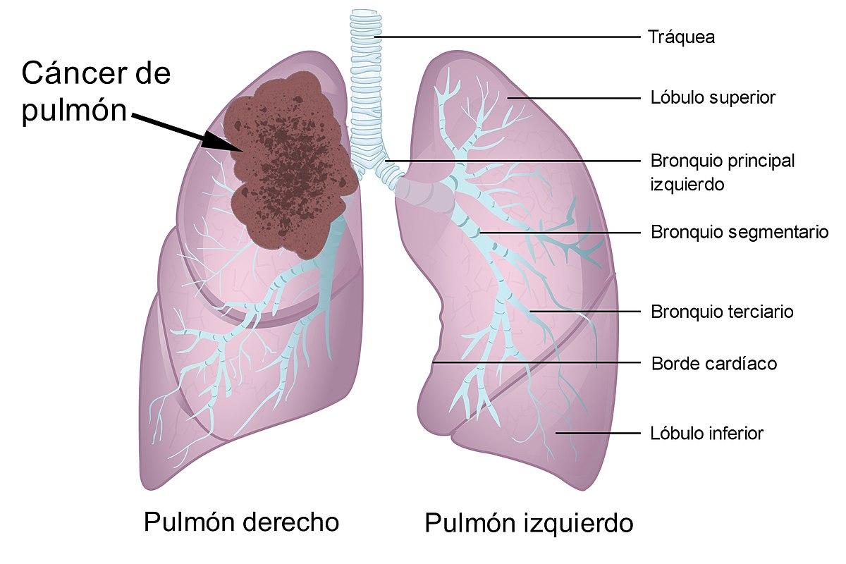cancer de colon que organos afecta negii pot dispărea