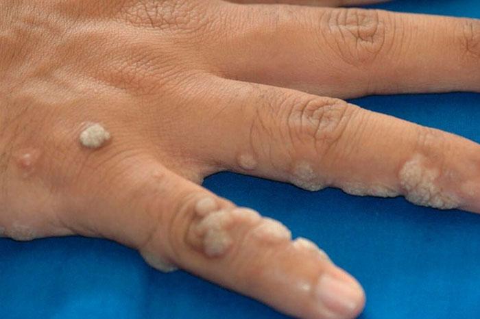 Parazitozele intestinale: giardioza si ascaridioza Ce viermi sunt sau nu