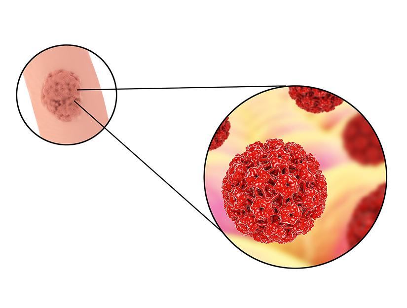 ce să faci dacă ai veruci genitale vaccino papilloma 9 valente
