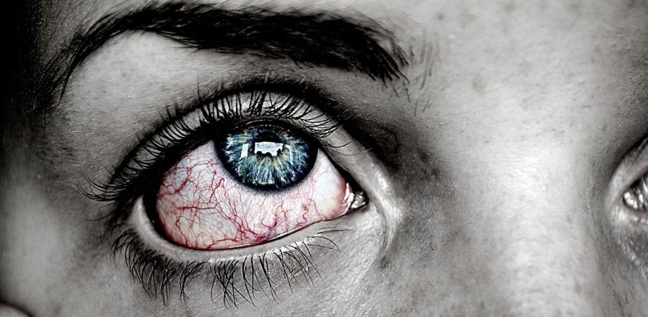 tratament pentru ochi pentru paraziți unguent de papilomavirus pentru gât