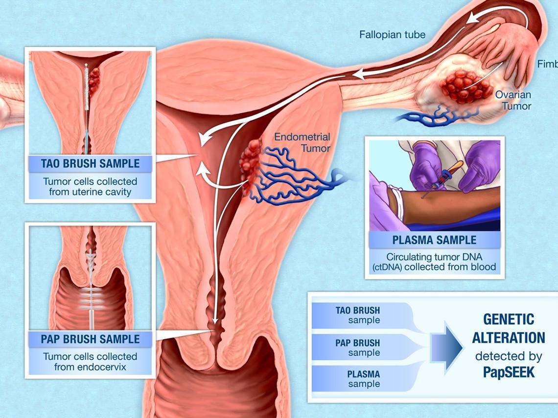 detoxifiere cu suc de colon rana după îndepărtarea verucilor genitale se stinge