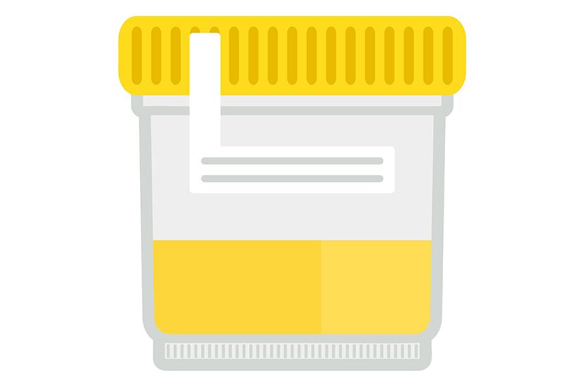 Totul despre infectiile urinare - cauze, simptome, tratament   MedLife