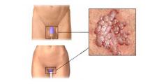 endocervicoză și condiloame