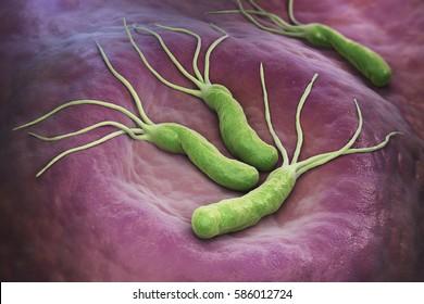 papilloma virus tumore ano
