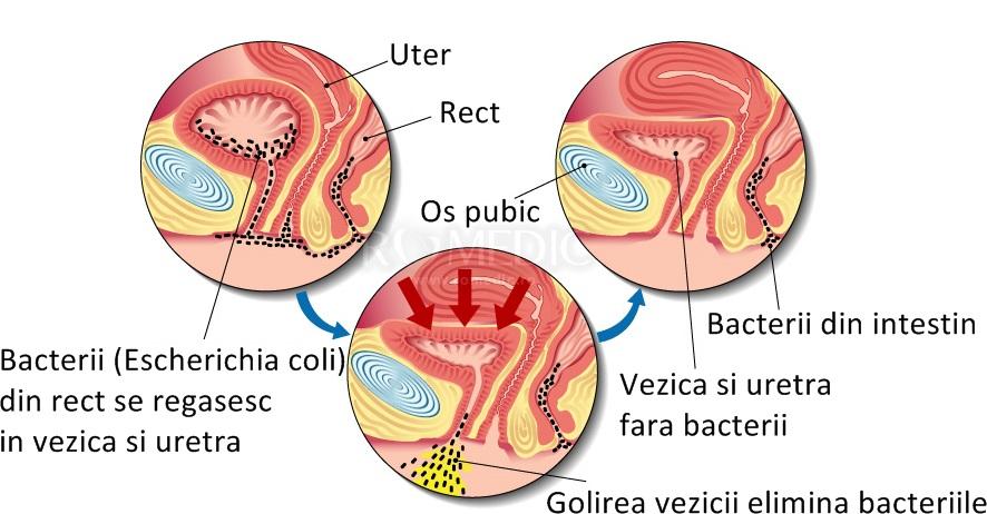 bacterii marite in urina