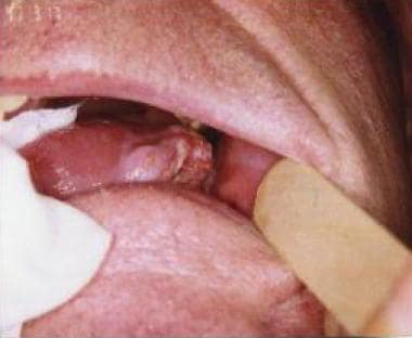Hpv tumor on tongue - Does hpv cause tongue cancer