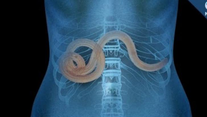 Simptomele viermilor din corpul uman, Clinica de tratament a viermilor umani