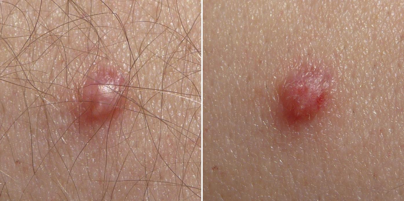 cum se îndepărtează verucile genitale din perineu
