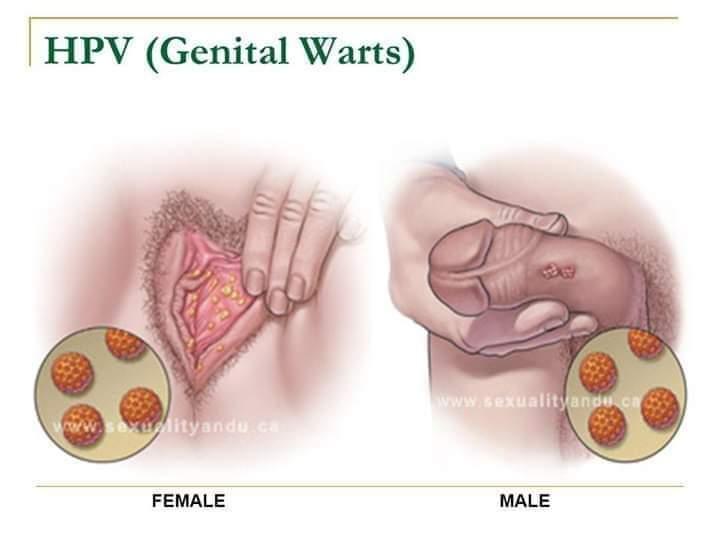 negi genitale lângă anus