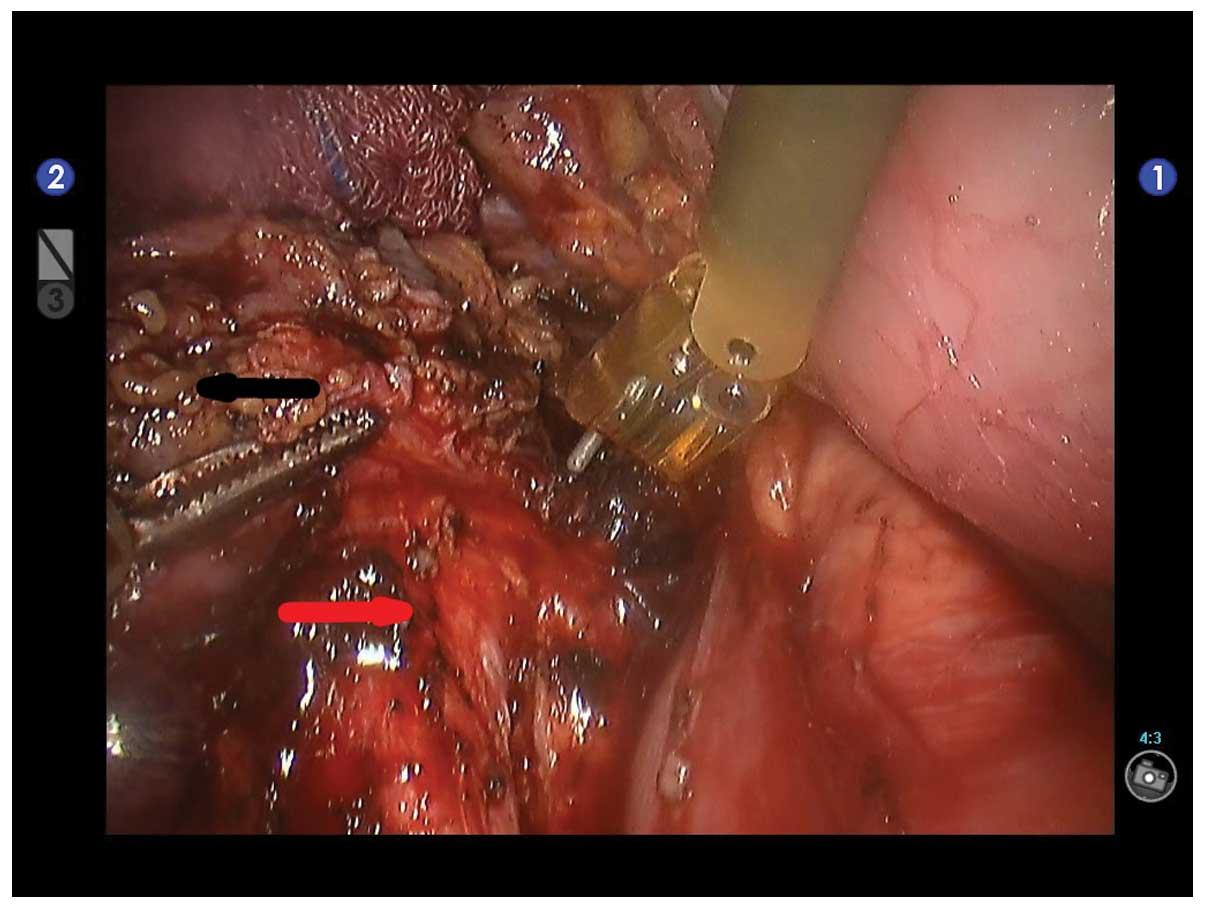 Operaţie extrem de rară în România, efectuată la Spitalul Monza | Spitalul Monza