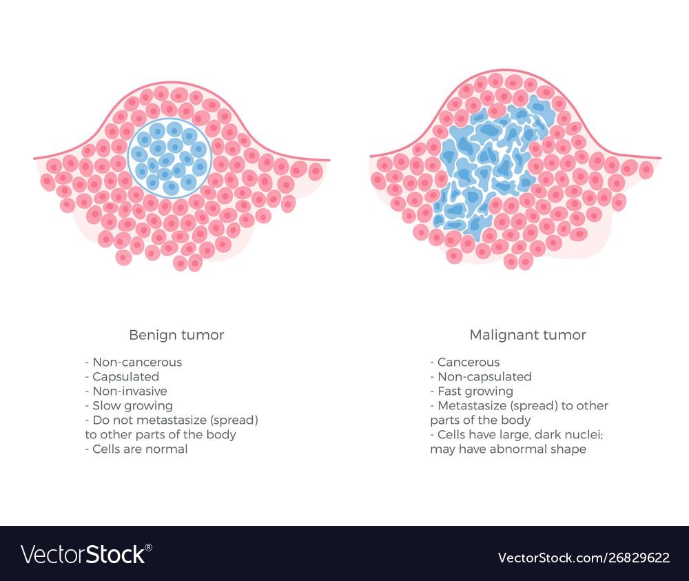 condyloma acuminatum excision cpt îndepărtarea verucilor genitale la nivelul anusului