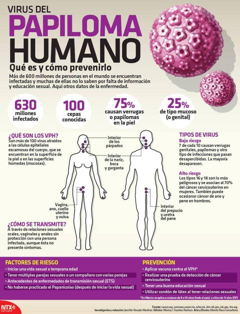 Cancer de cuello uterino por papiloma virus