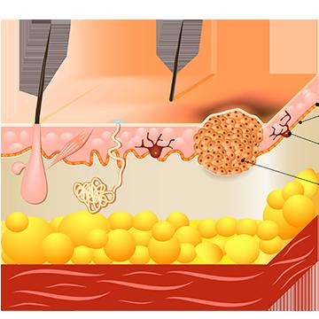 cancer de piele pe fata simptome papillomavirus humains potentiellement oncogenes