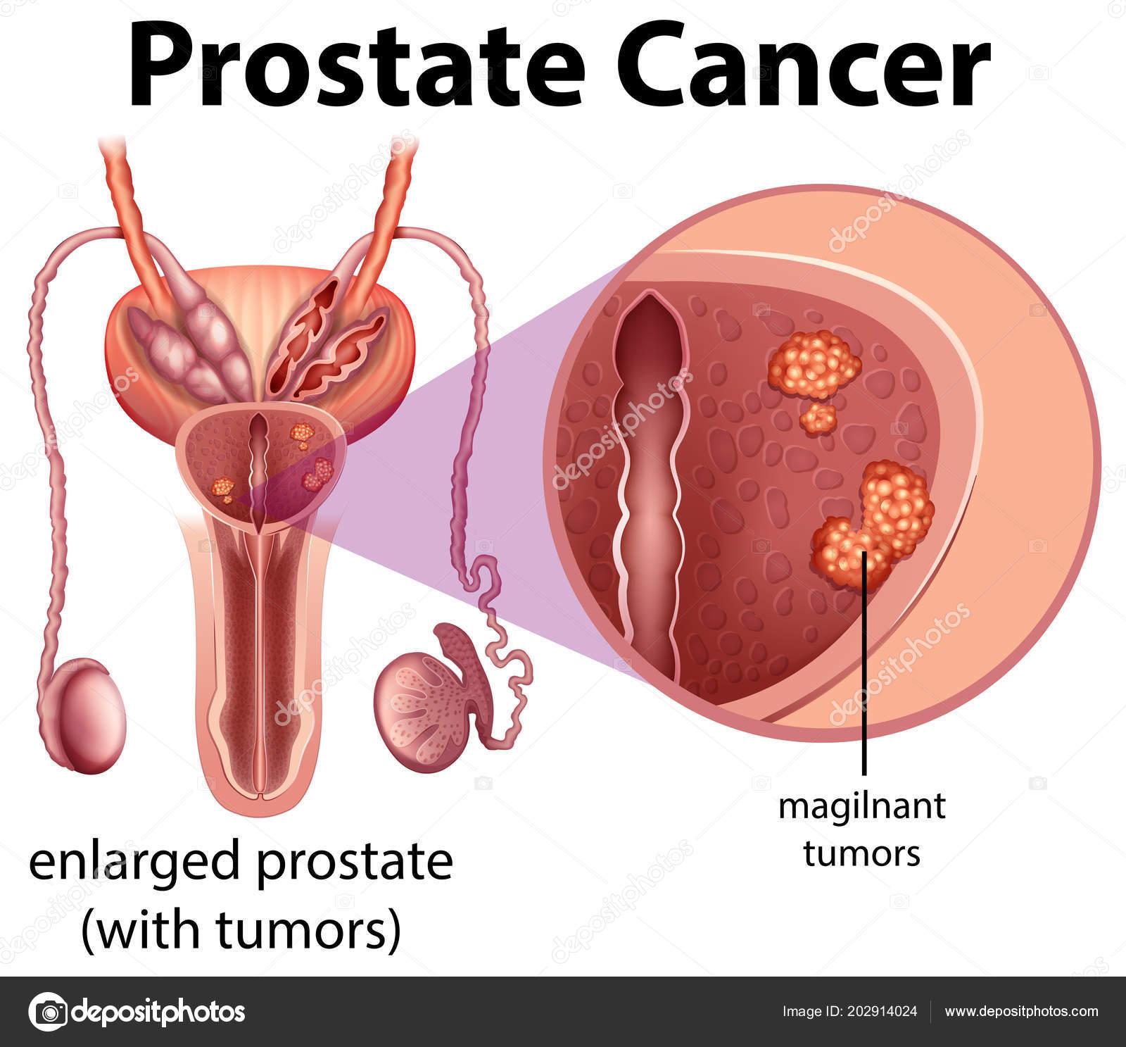 Cancer de prostata justificacion