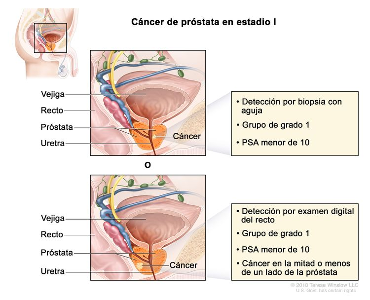 cancer de prostata leve hpv vaccine side effects back pain