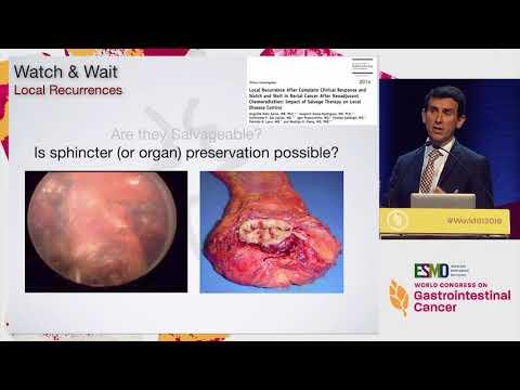 Referat: Cancer du Colon (#) - Graduo, Cancer colorectal femme Cancer du colon papillomavirus