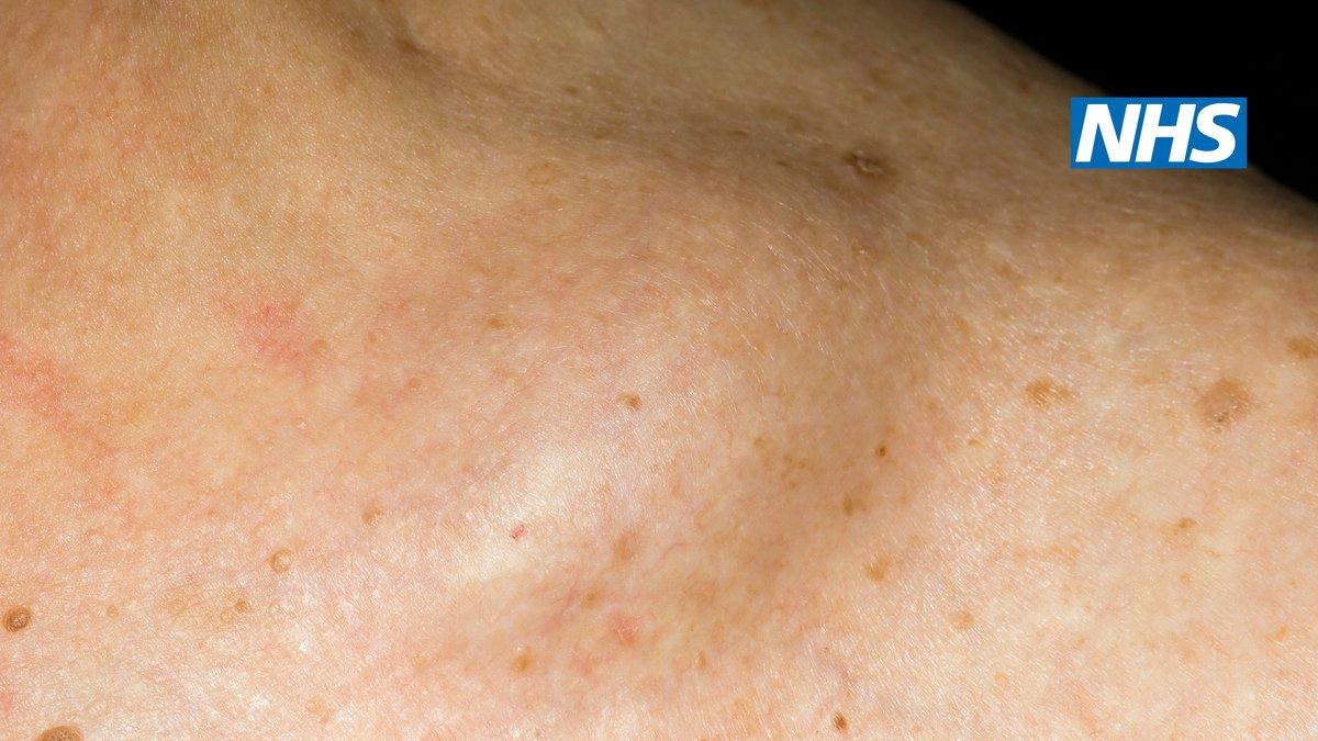 cancer limfatic non hodgkin