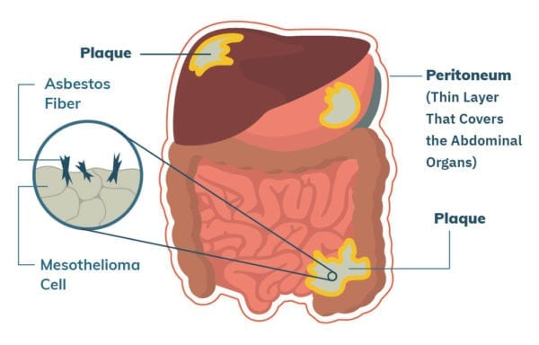 Profilul de risc clinic asociat cancerului ovarian - Cancer peritoneal lining