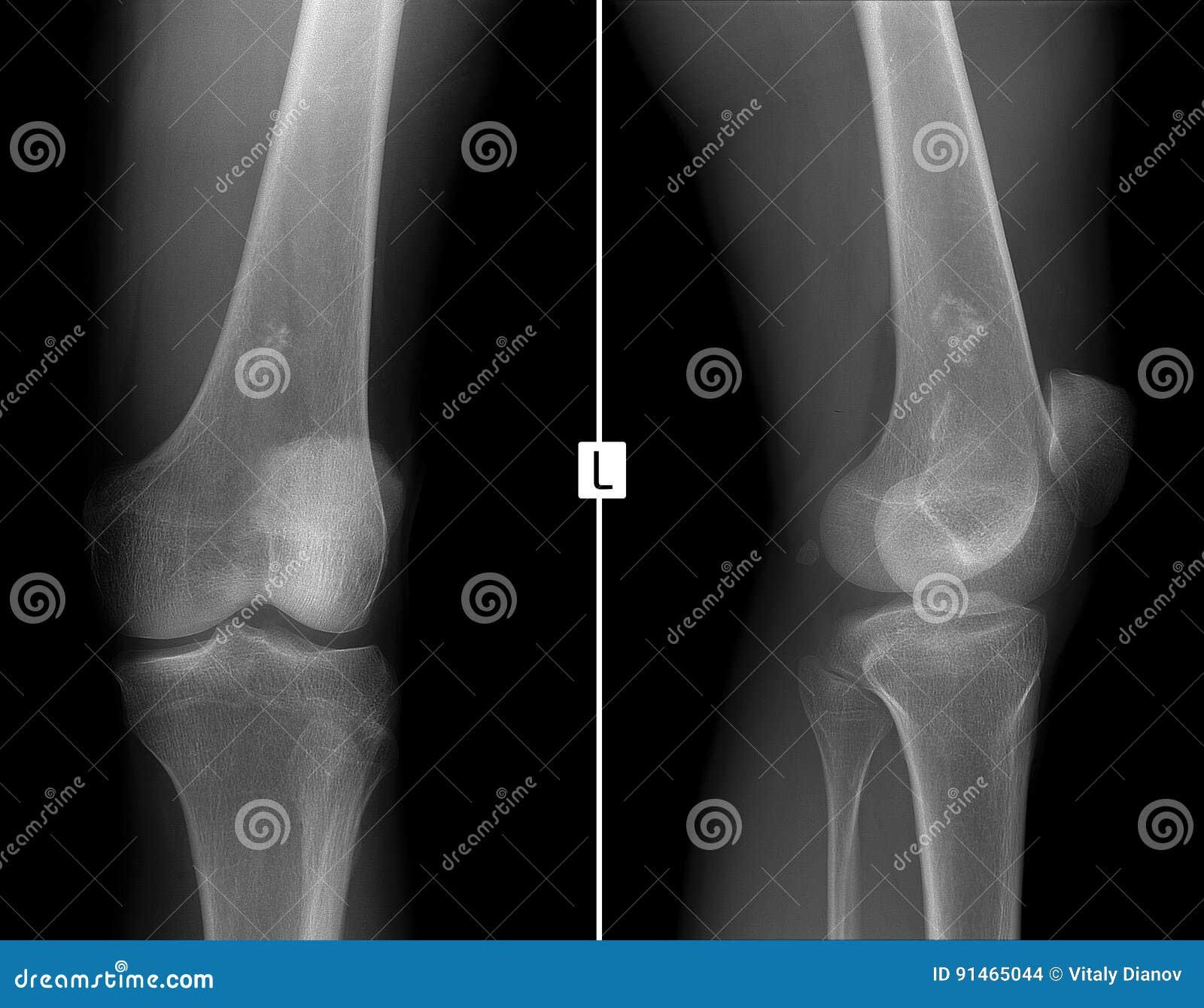 Cancer sarcome genou. SYNOVIAL - Definiția și sinonimele synovial în dicționarul Franceză