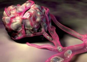 cancerul benign si malign
