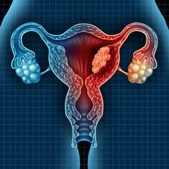 Cancerul endometrial – cauze, simptome, tratament