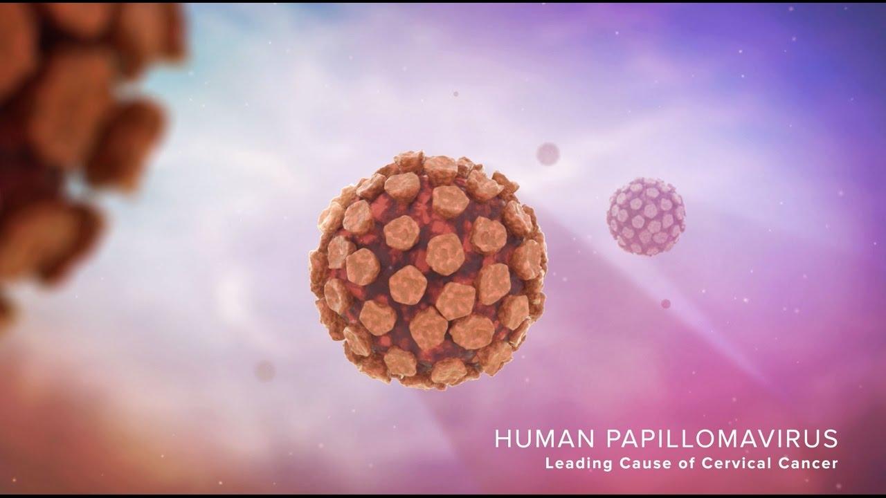cauze cancer de sigmoid oxiuros tratamiento con ivermectina