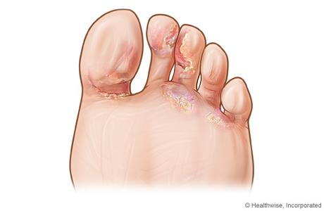 ciuperci ale piciorului papiloame în inghilă în tratamentul bărbaților