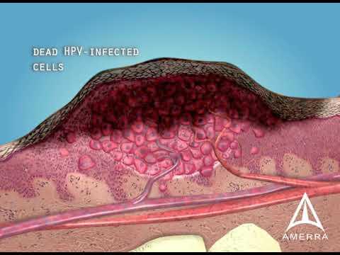 Infecție fungică pe picioare
