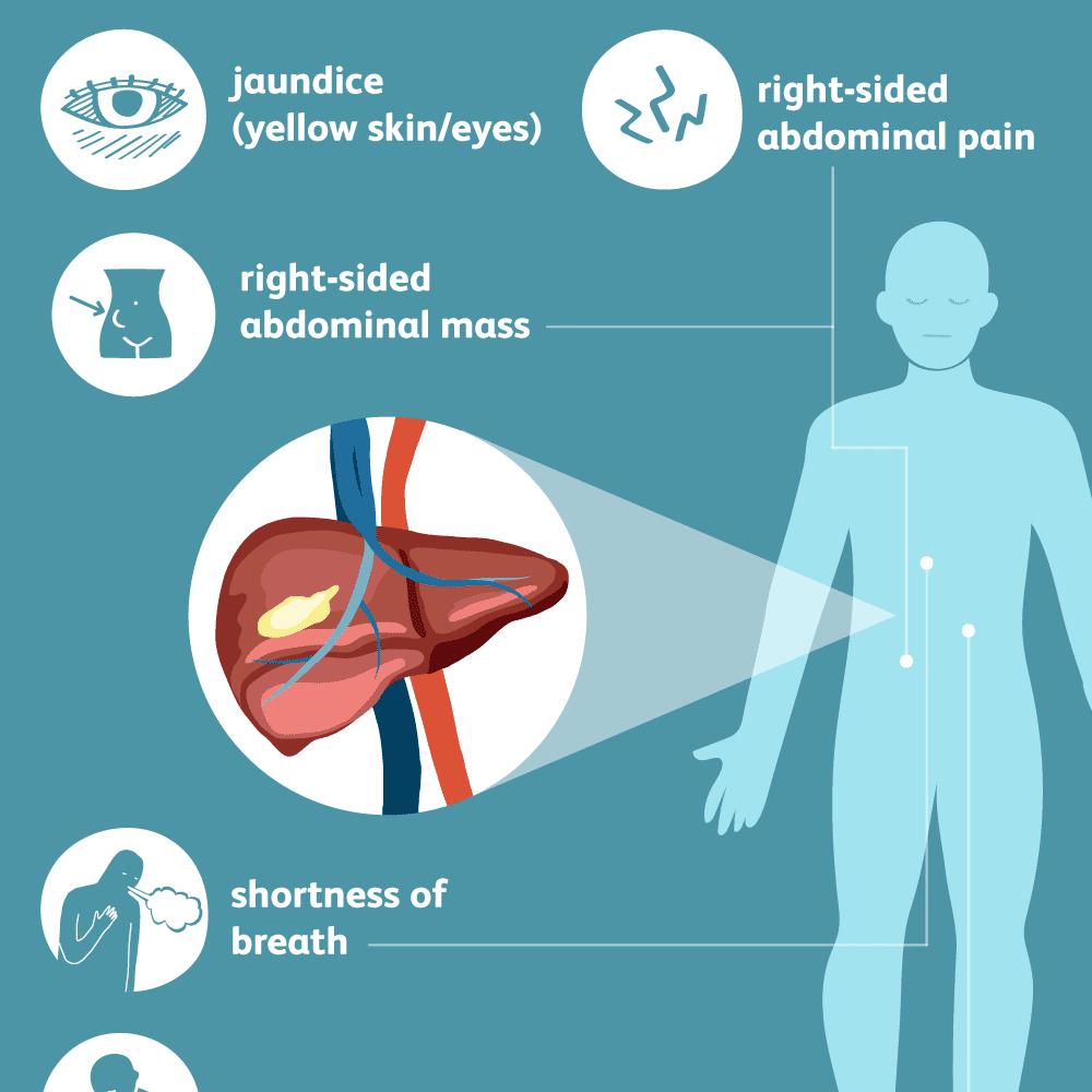 hepatic cancer leukemia