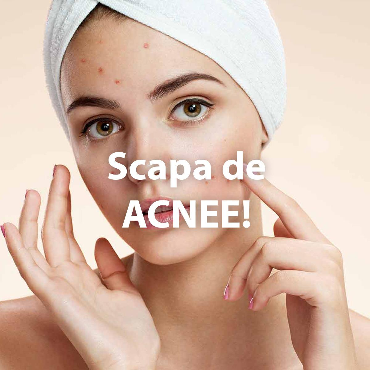 Alimente care lupta contra acneei