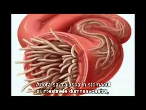 cum să elimini paraziții intestinali cum să luați frotiu fără durere
