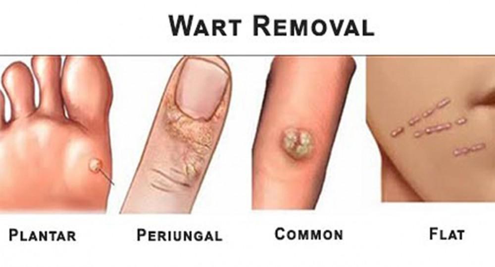 wart on foot black center ovarian cancer treatments