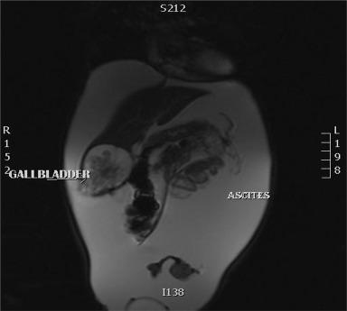 papilloma of the gallbladder