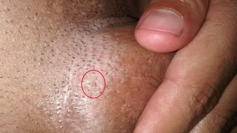 Cum se trateaza verucilor genitale la femei? - Angiom September
