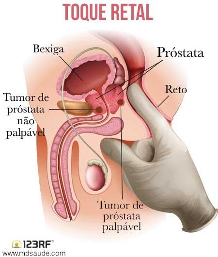 cancer de prostata imagem