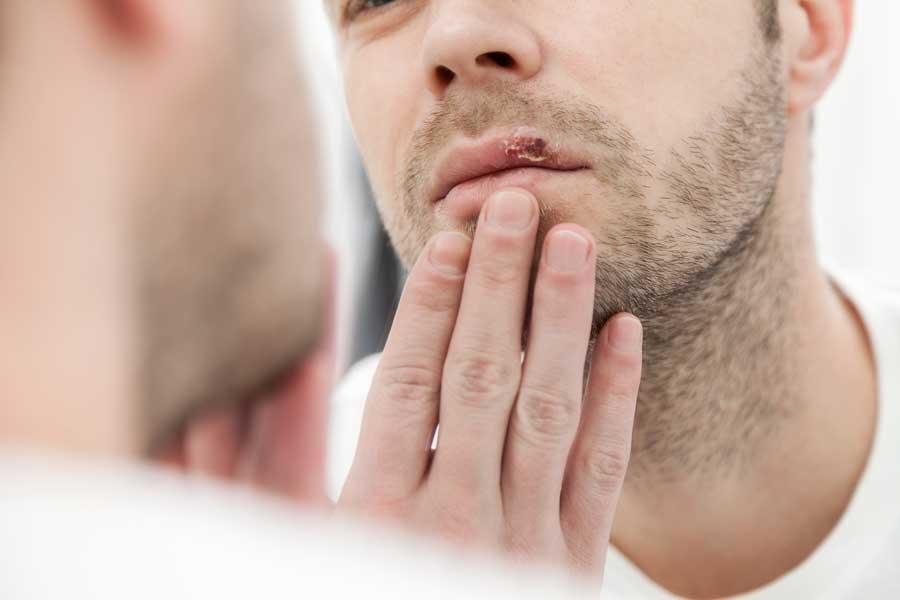 enterobioza, așa cum se manifestă la adulți