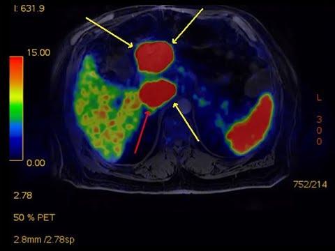 enterobius vermicularis gydymas sistem de detoxifiere a colonului