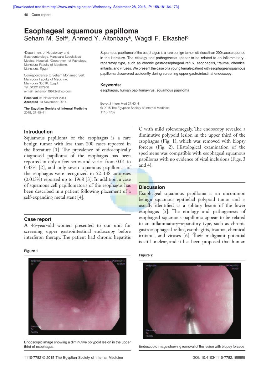 Esophagus squamous papilloma hpv, V-ar putea interesa