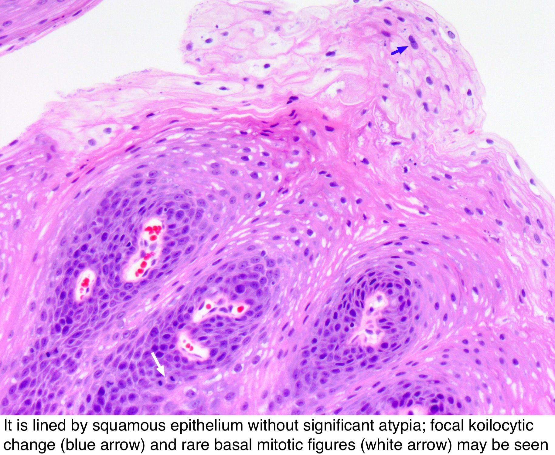 Squamous papilloma esophagus pathology