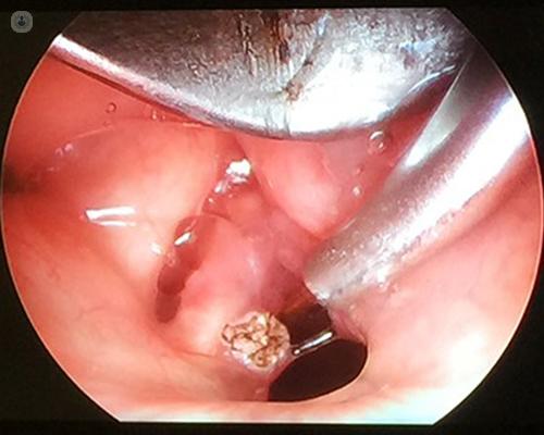 Case laryngeal papilloma