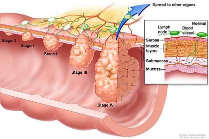 Cercetatorii au descoperit mecanismul prin care colita cauzeaza cancer colorectal
