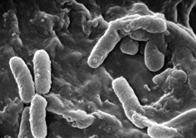 toxine veut dire quoi distrugerea radiochirurgicală a verucilor genitale
